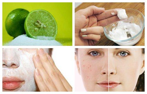 beneficios del bicarbonato de sodio con limon para la piel