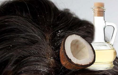 aceite de coco anticaspa