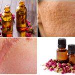Aceite de rosa mosqueta para las cicatrices