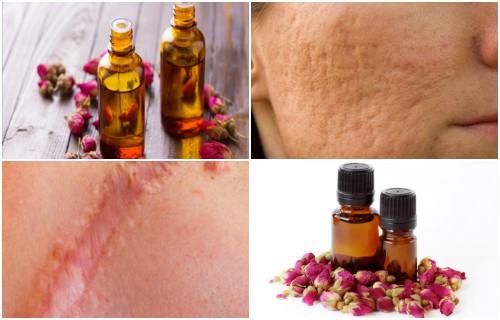 El aceite de rosa mosqueta sirve para quemaduras