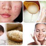 agua de arroz para el acne