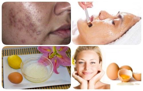 mascarilla de clara de huevo y limon para el acne