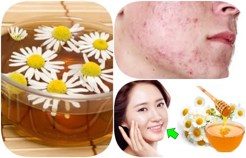 desinflamar acne con manzanilla