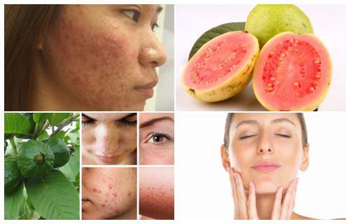 beneficios de la guayaba para el acné