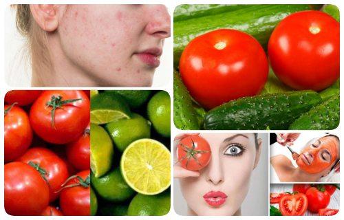 tomate para el acne y manchas