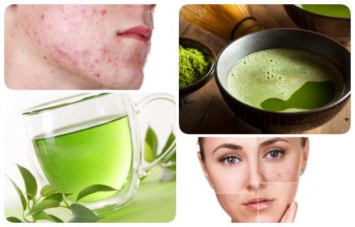 beneficios del té verde para el acne