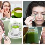 tonico de te verde para el acne