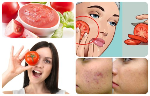 como usar tomate para el acne