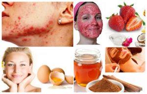 remedios caseros para el acné juvenil