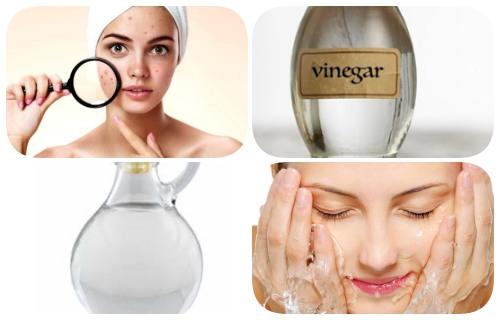 como usar vinagre blanco en la cara
