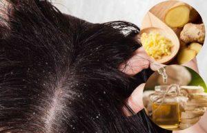 beneficios del jengibre para la caspa