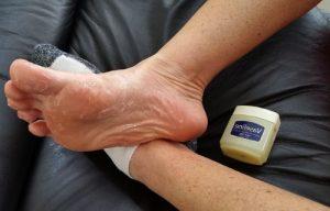 vaselina para hidratar los pies