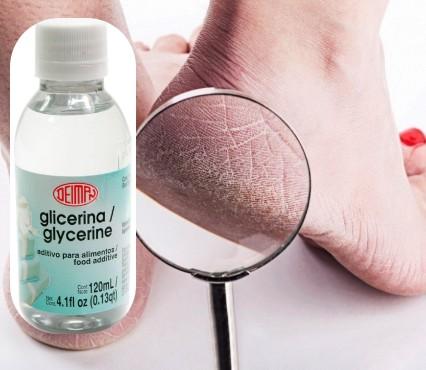 usos de la glicerina en los pies