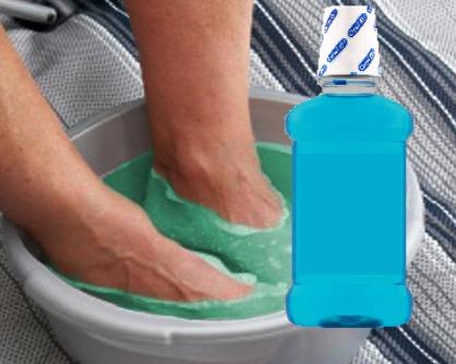 beneficios del listerine para los pies