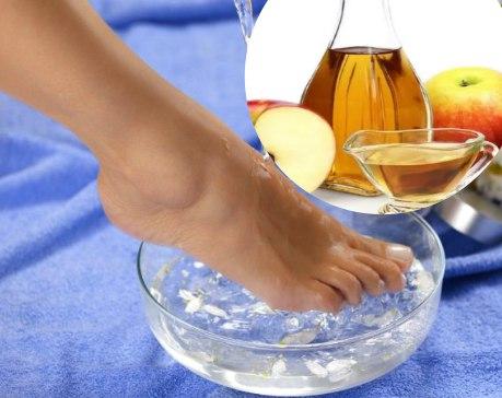 Remedios caseros para hongos en los pies con vinagre de manzana