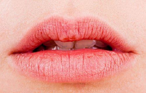 Remedios para los labios resecos
