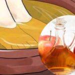 vinagre de manzana para los hongos de los piies