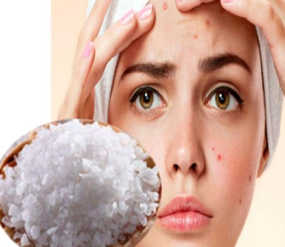 sal de glauber para el acné