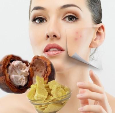 eliminar las cicatrices con manteca de cacao