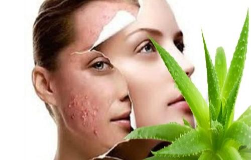 Como borrar cicatrices del rostro con remedios caseros