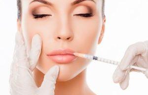 perfilado de labios con ácido hialurónico