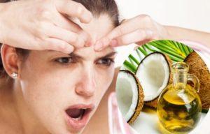 aceite de coco para eliminar el acné