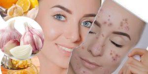 beneficios del ajo para el acné