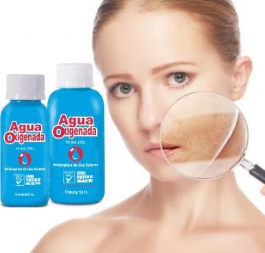 como aclarar la piel con agua oxigenada