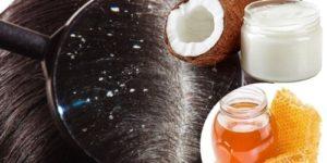 tratamientos para eliminar las costras del cuero cabelludo