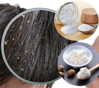eliminar las costras del cuero cabelludo