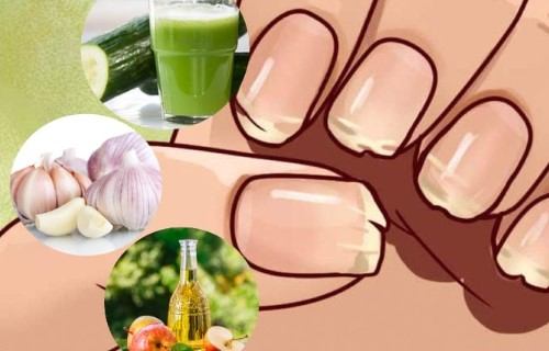 como evitar las uñas quebradizas
