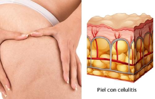 Beneficios del bicarbonato para la celulitis
